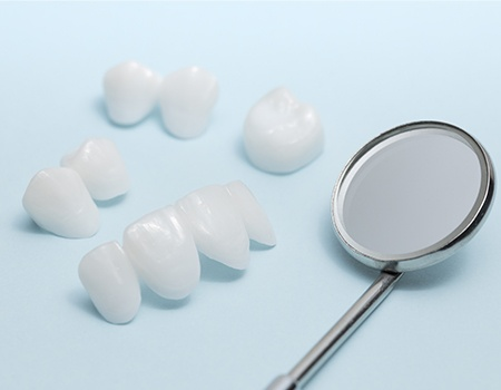 Dental restorations prior to placement