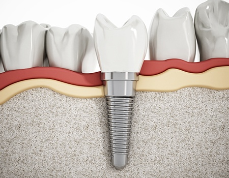 animation of implant supported dental crown